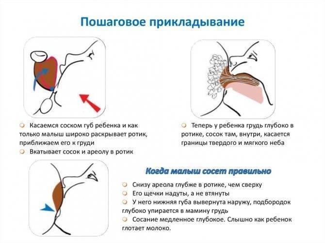 Мастит при грудном вскармливании. причины, симптомы, лечение и профилактика | советы для мам