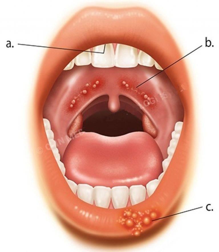 Стоматит на миндалинах у ребенка лечение | | лечение простуды