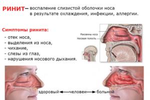 Простудный насморк: причины и лечение заложенности носа