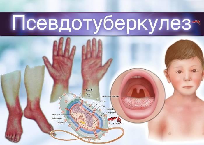 Псевдотуберкулез фото сыпь у детей фото