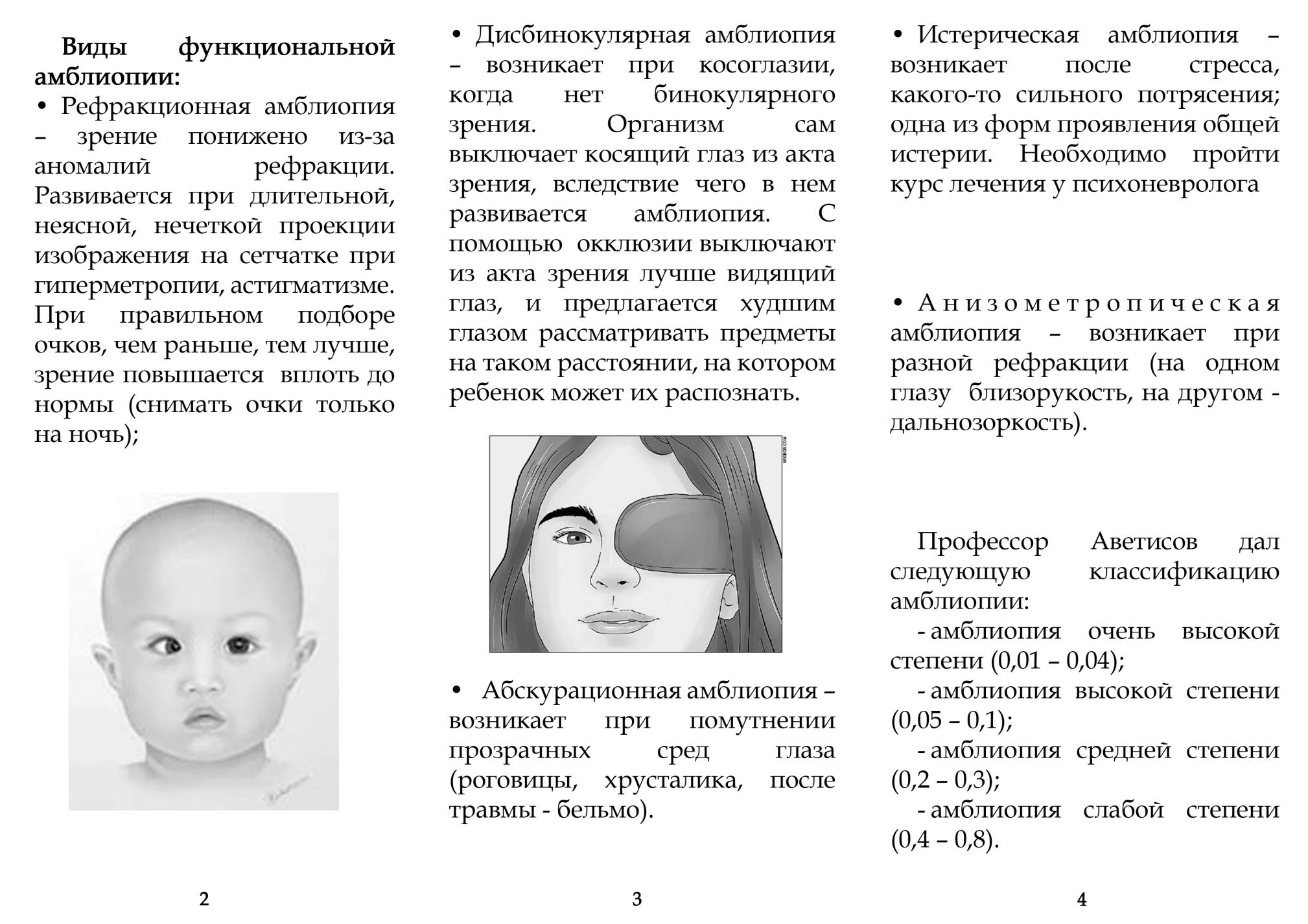 Амблиопия(синдром «ленивого глаза»)-виды, степени, профилактика от врача-офтальмолога курьяновой ирины валентиновны | офтальмология