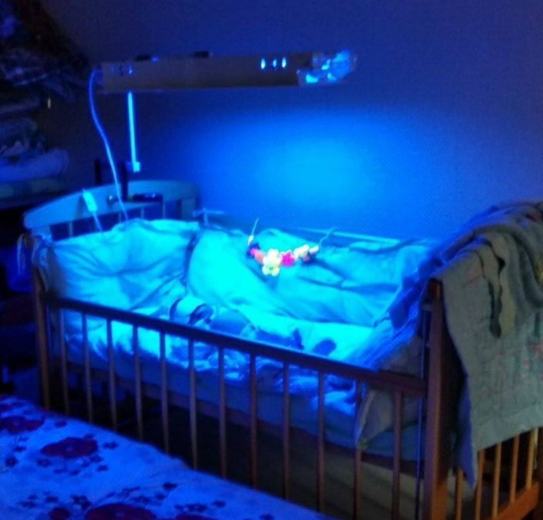 Фототерапия новорожденных при желтухе: лечение в больнице и дома