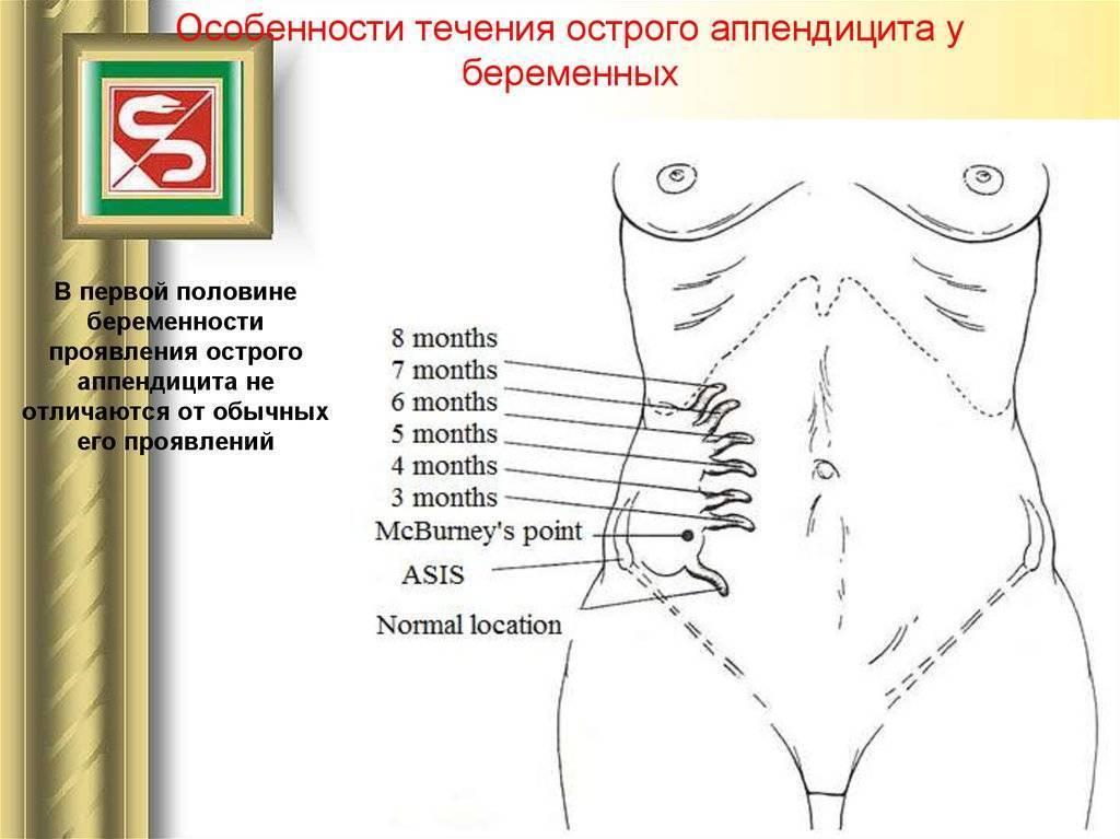 Аппендицит при беременности у женщин: симптомы, удаление, последствия