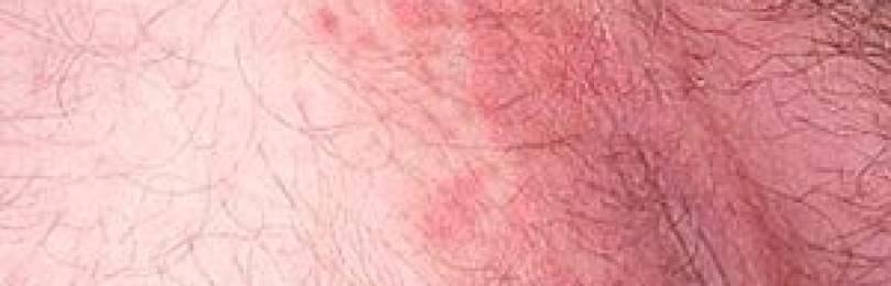 Аллергия у ребенка в паху • аллергия и аллергические реакции