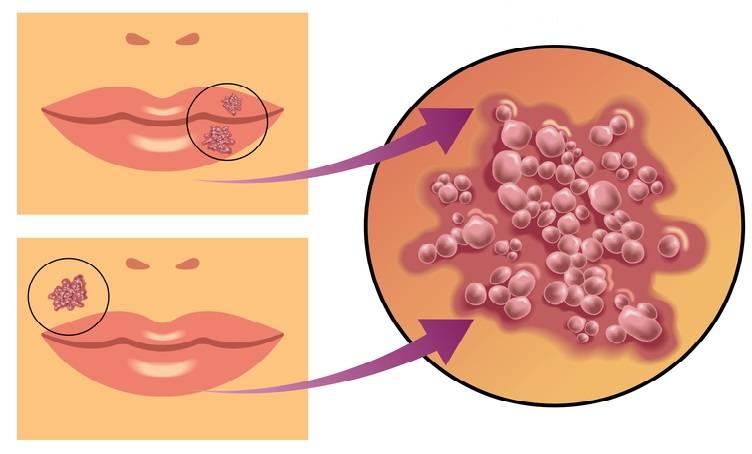 Лечение герпеса быстро - (1,2,6 тип) препараты, методы лечения вируса