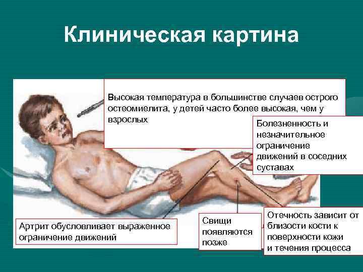 Остеомиелит у новорожденных. лечение признаки остеомиелита