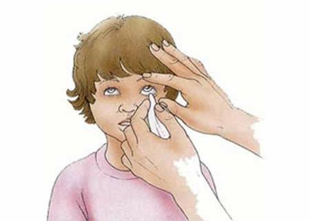 Что делать, если ребенку в глаза попал песок, как правильно промыть слизистую?
