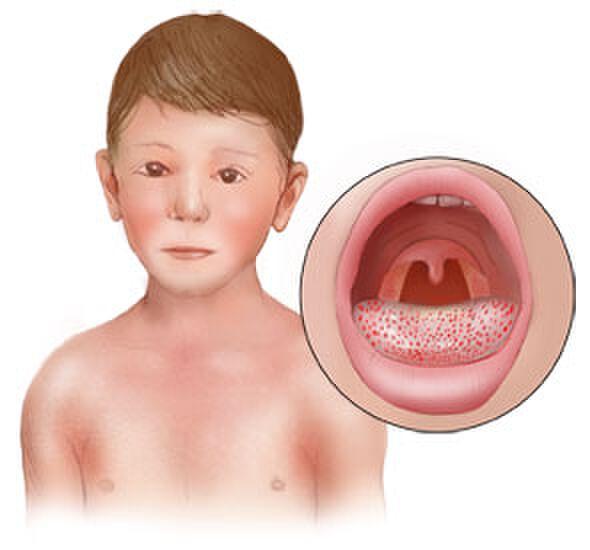 Сыпь в горле у ребёнка и температура – причины и что делать?