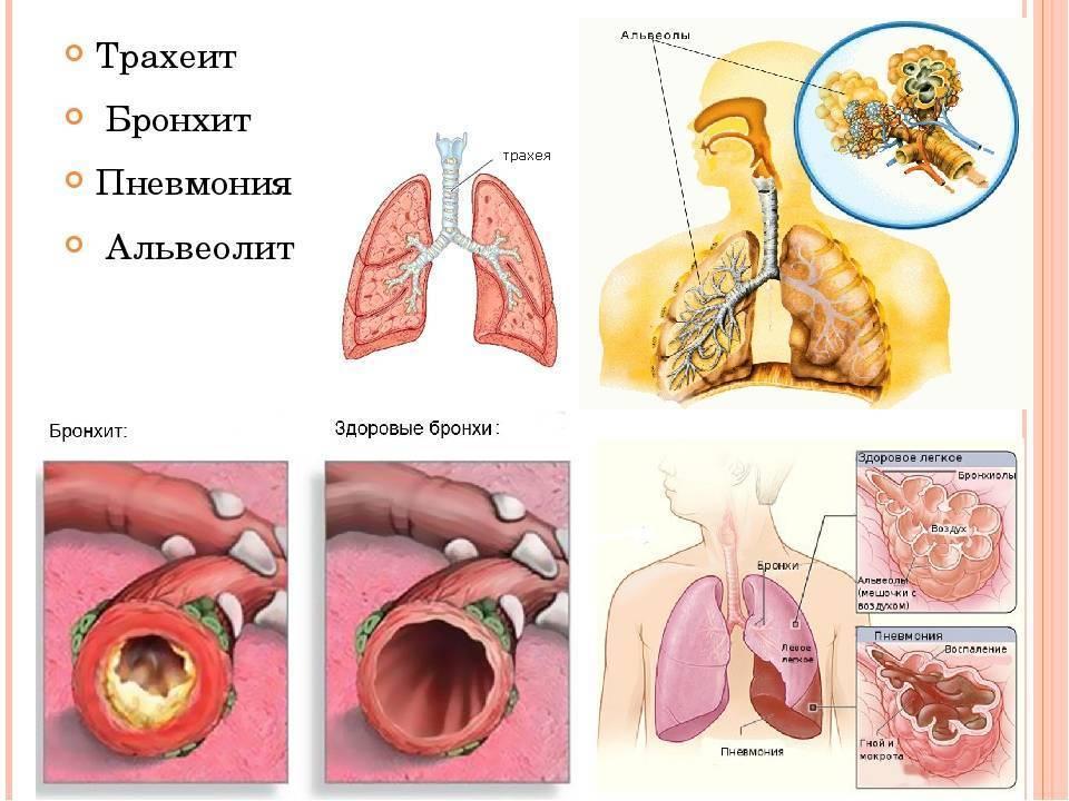 Трахеит - симптомы и лечение. журнал медикал