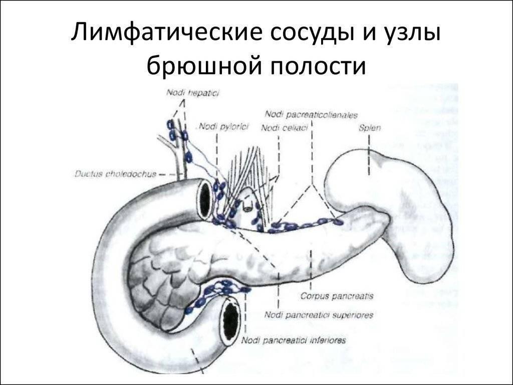 Лимфаденопатия лимфоузлов забрюшинного пространства: что это такое, причины
