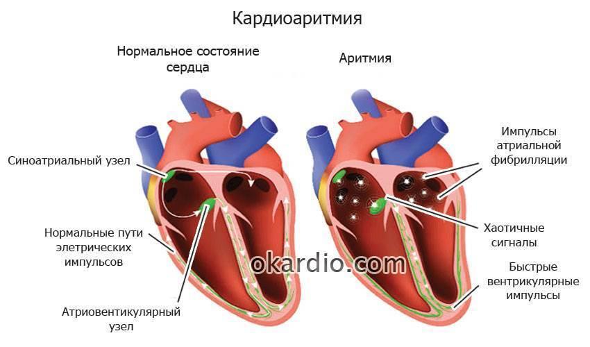 Синусовая аритмия у детей и подростков: выраженная, умеренная, дыхательнаясинусовая аритмия у детей и подростков – что это, диагностика и лечение заболевания - о сердце