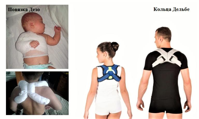 Лечение перелома ключицы у ребенка со смещением и без: наложение повязки, период восстановления и последствия - все о суставах