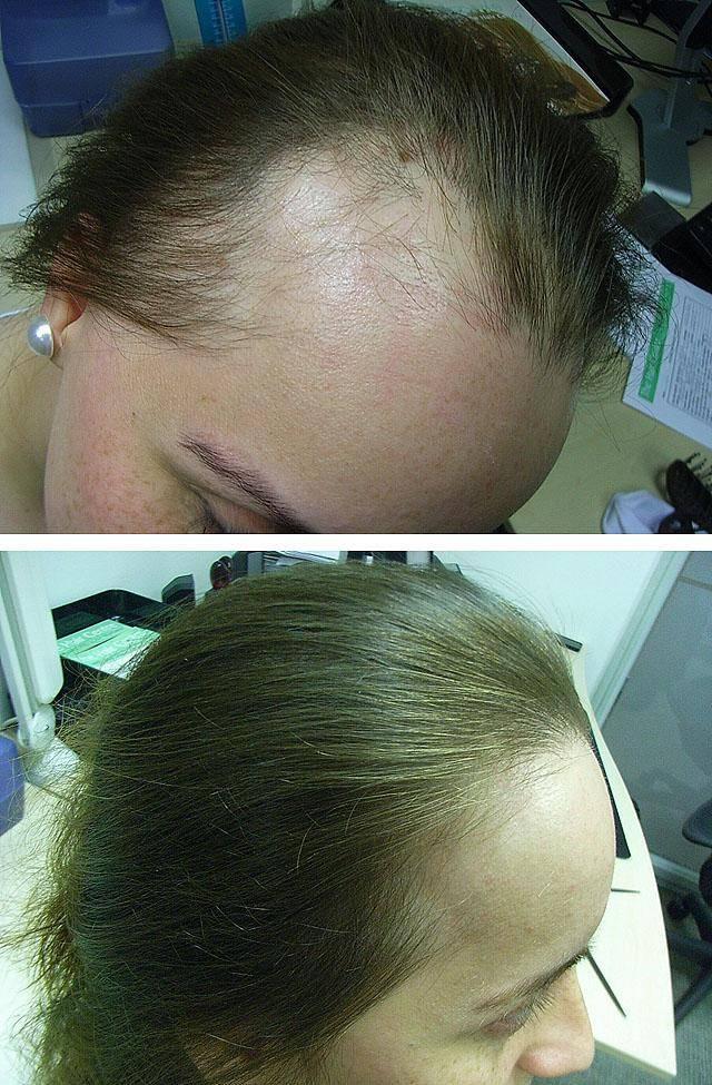 Очаговая алопеция у мужчин: что это такое, симптомы, причины и методы лечения гнездвого облысения (выпадения) волос