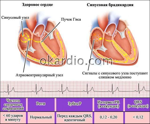 Брадикардия у детей симптомы и лечение