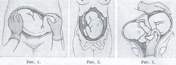 Головка опустилась в таз когда роды у повторнородящих