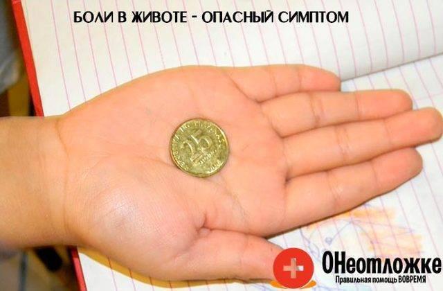 Ребенок проглотил монету, рубль: что делать, через сколько выйдет, последствия