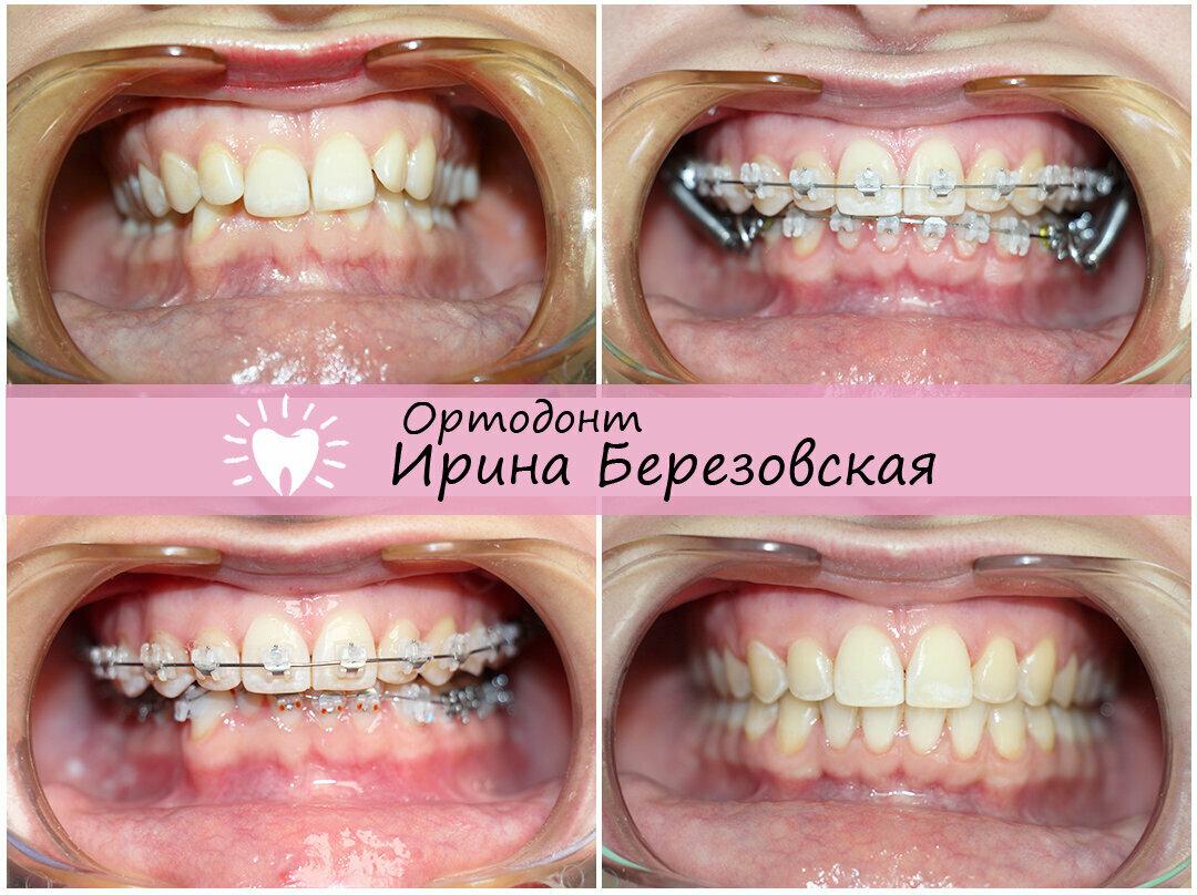 Со скольки лет можно ставить брекеты — зубы
