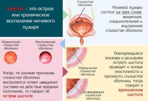 Эксклюзив об антибиотиках при цистите у женщин и мужчин со списками и сравнением