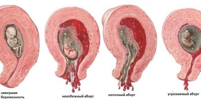 Кровотечение во время беременности на ранних сроках