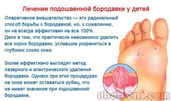 Подошвенная бородавка на ноге у ребенка