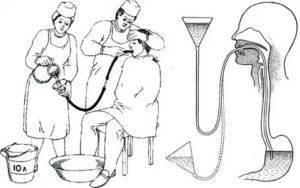 Промывание желудка у детей - алгоритм техника в домашних условиях промывание желудка у детей - алгоритм техника в домашних условиях