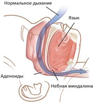 Все о хрипах у грудничка: почему хрипы у новорожденного в горле во сне и при дыхании