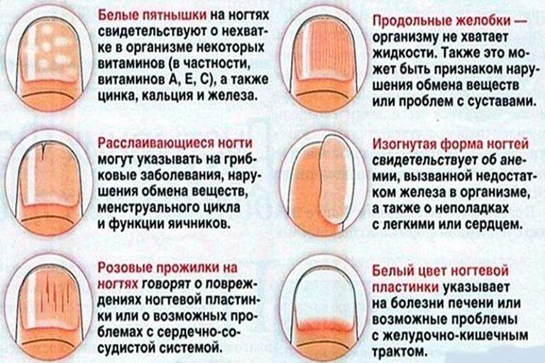 Отслаивание ногтевой пластины у детей