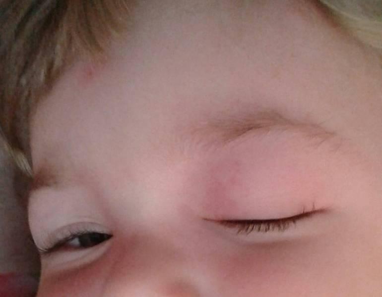 Что делать, если ребенка укусил в глаз комар и все опухло