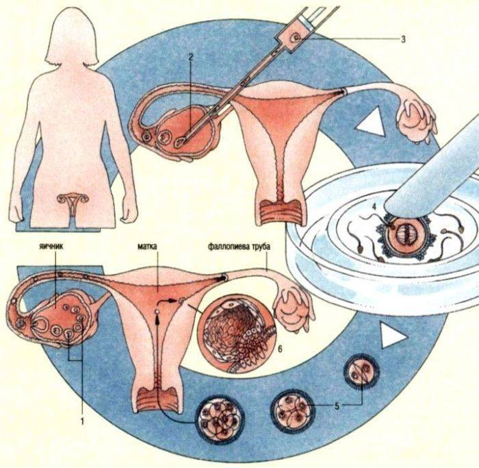 Астенотератозооспермия: что это такое и как лечить, можно ли забеременеть естественным путем?