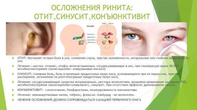 Вазомоторный ринит: причины заболевания, диагностика, лечение, осложнения