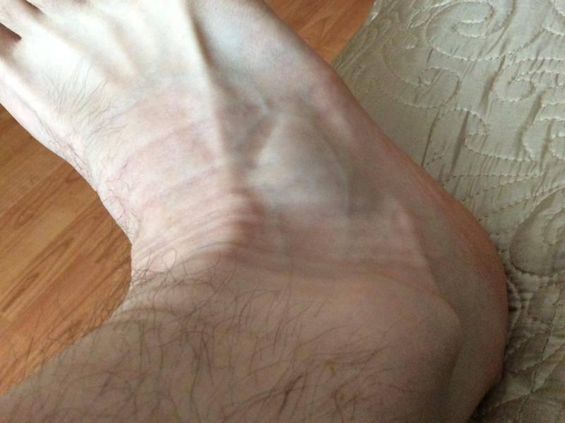 Больно наступать: лечение уплотнения на подошве ноги