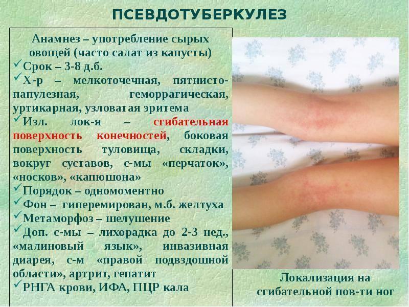 Кишечный иерсиниоз: симптомы и лечение инфекции у взрослых, как лечить псевдотуберкулез