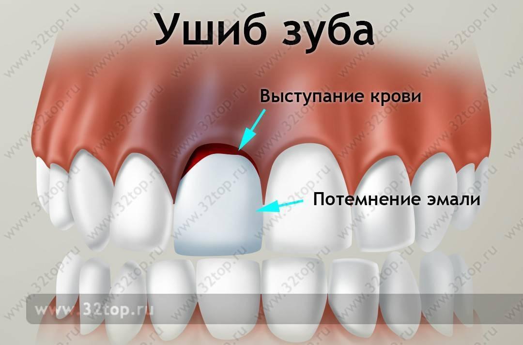 Ребенок сильно ударился молочными зубами и повредил десну. что имеет смысл предпринять?.. может ли повлиять на коренные? ~ я happy mama