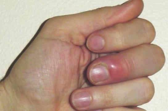 Нарыв на пальчике у грудничка: ???? вопросы хирургии и советы по лечению