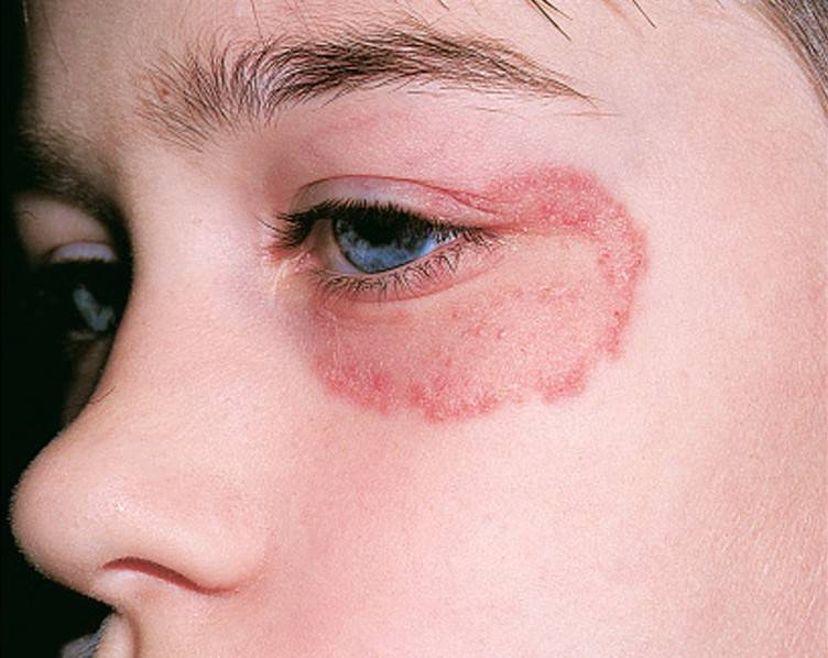 Микоз на ноге, пальце, стопе у детей: симптомы, диагностика и лечение