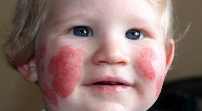 Аллергический дерматит: 8 фото с описанием, лечение, причины, симптомы