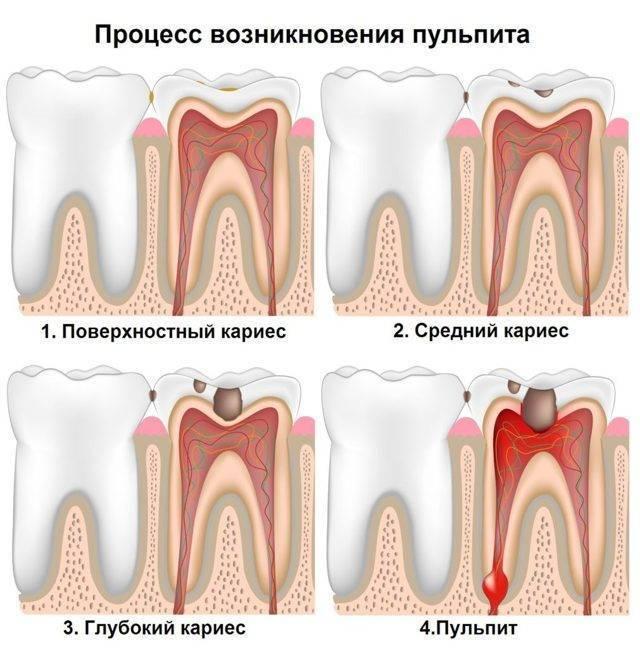 Пульпит молочных зубов у детей: симптомы и лечение