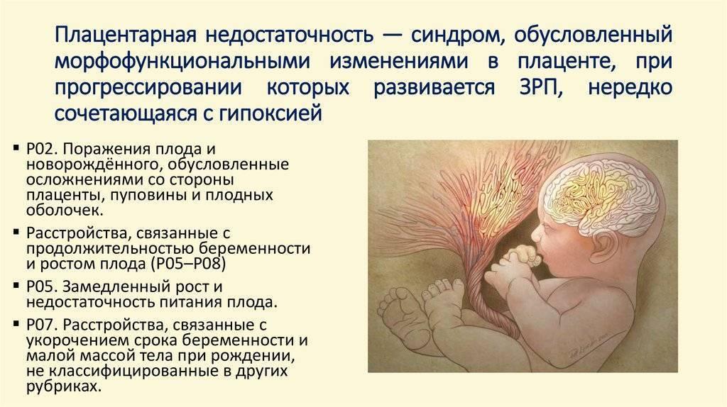 Плацентарная недостаточность при беременности