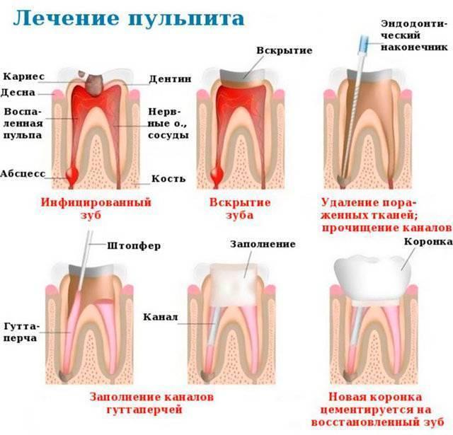Лечение пульпита молочных зубов у детей: этапы лечения, как лечат