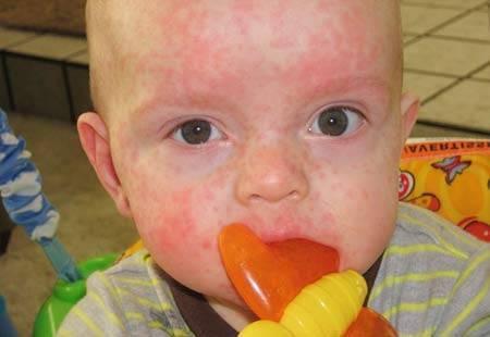 Розеола у детей симптомы - подробно с фото