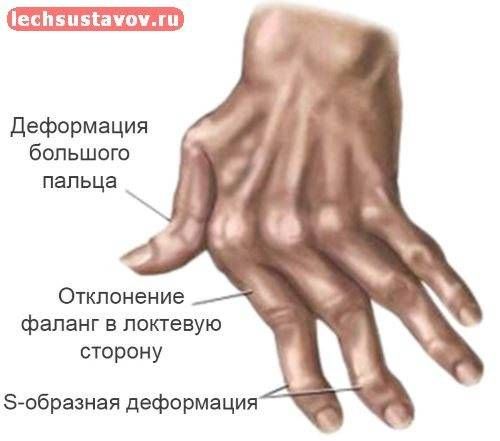 Обзор ревматоидного артрита у детей: симптомы, три формы, лечение
