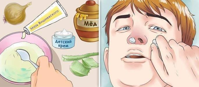 Симптомы и лечение гайморита в домашних условиях