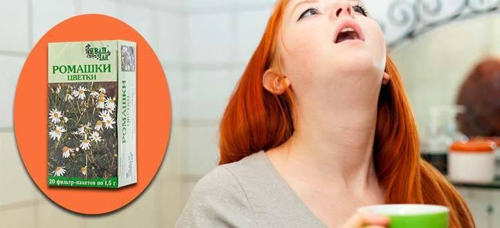 Календула при беременности — можно ли полоскать ей горло на ранних и поздних сроках? - wikidochelp.ru