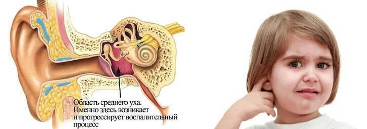 Прострел в ухе у ребенка – что вызывает патологию и как лечить маленького пациента |