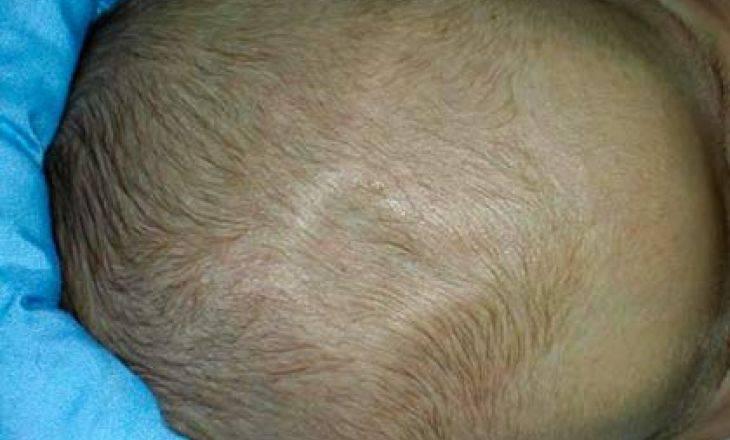 Впалый родничок у грудничка: причины западения темечка с фото