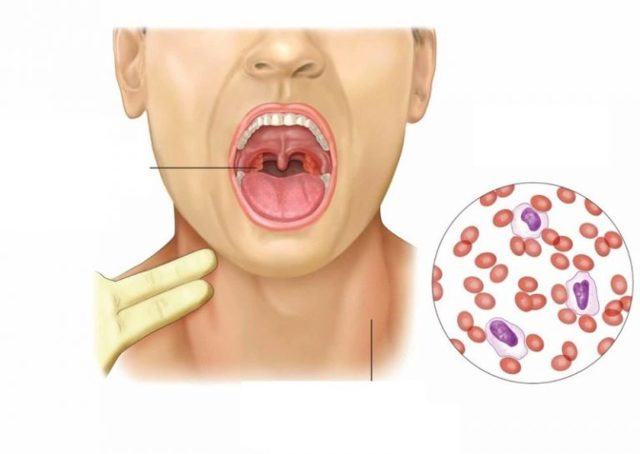 Герпес в горле: фото у взрослых, ребенка, симптомы, герпес горла на миндалинах и задней стенке
