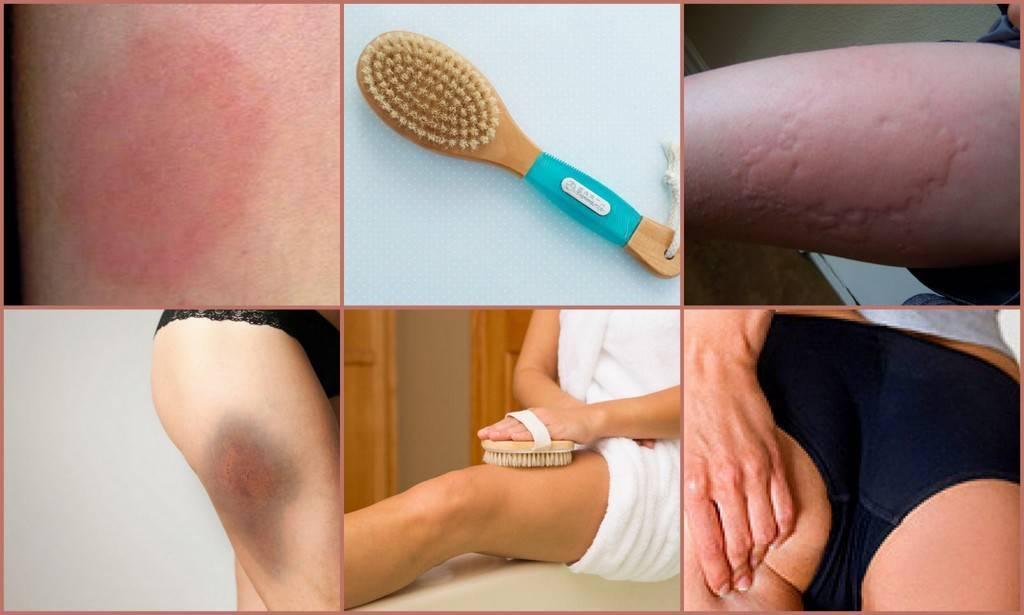 Антицеллюлитный массаж дома – топ-5 видов (правила проведения)