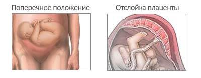 """Кесарево сечение при тазовом предлежании плода: можно ли """"перевернуть малыша""""?"""