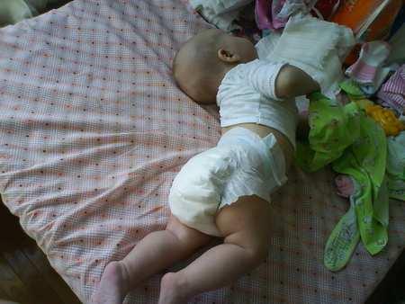 От чего грудничок выгибает спину дугой и запрокидывает голову назад. почему грудной ребенок выгибает спину дугой и запрокидывает голову назад: причины «акробатического мостика