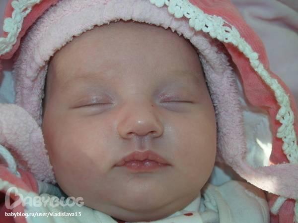 Цианоз носогубного треугольника у ребенка причины. синеет носогубный треугольник у грудничка: что делать и с чем это связано? действия при появлении цианоза у ребенка